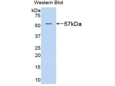 GPT / Alanine Transaminase Antibody