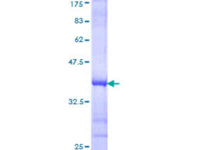 SLC44A2 / CTL2 Protein