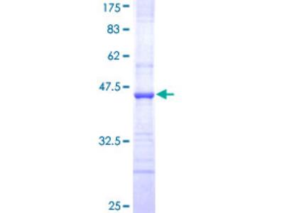 ABCC8 / SUR1 Protein