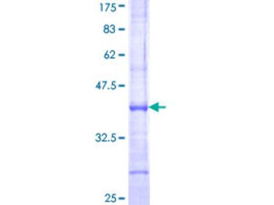 SENP1 Protein