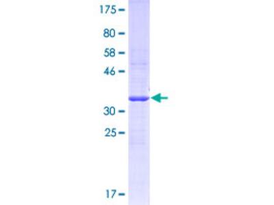 FPR3 / FPRL2 Protein