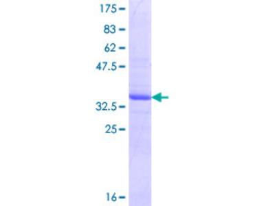 SNAPC3 Protein