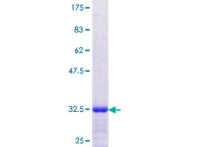 SGCD / Delta-Sarcoglycan Protein