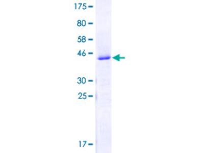 SNRP70 / SNRNP70 Protein