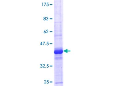 LRRC4C Protein