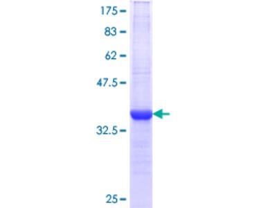 AKT1 Protein