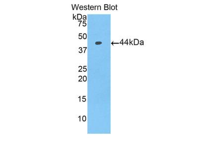 PIP / GCDFP-15 Antibody