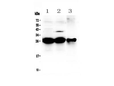 MBL2 / Mannose Binding Protein Antibody