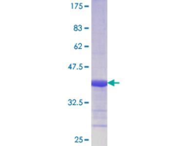 SSB / La Protein