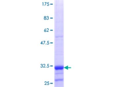URAT1 / SLC22A12 Protein