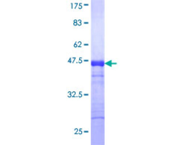 SCYL1 / NTKL Protein
