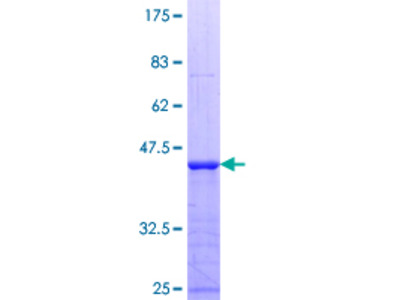 E2F7 Protein