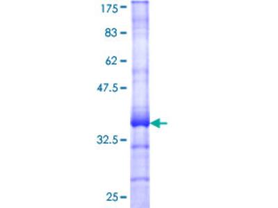 TMEM7 / RTP3 Protein
