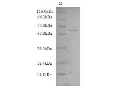 CSE1L Protein