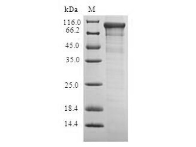 ADCY6 / Adenylate Cyclase 6 Protein
