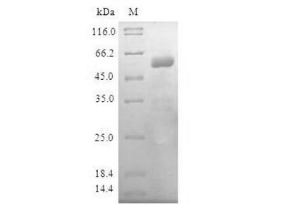 LIPA / Lysosomal Acid Lipase Protein