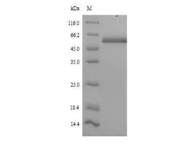 ICA69 / ICA1 Protein