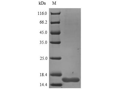 NGF Protein
