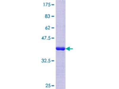 SV2C Protein
