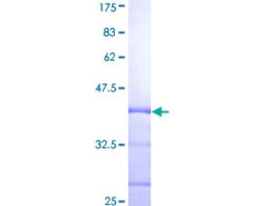 SH2D2A Protein