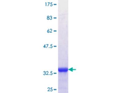 SLC39A8 / ZIP8 Protein