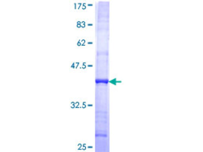 SMC5 Protein