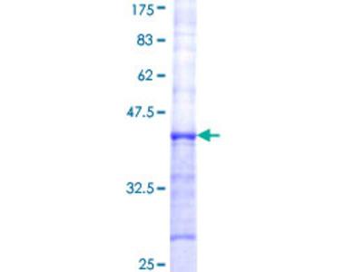 FUT8 Protein