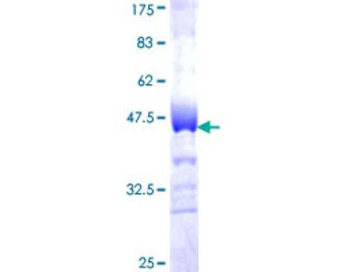 MAN1B1 Protein