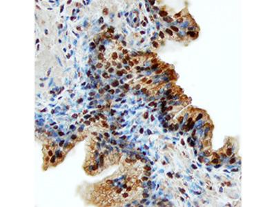 Human CLC Antibody