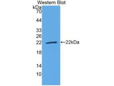 IL18 Antibody