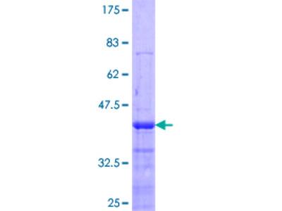 SSH1 Protein