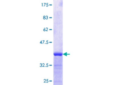 CREB3L2 / BBF2H7 Protein