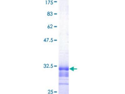 SLC22A5 / OCTN2 Protein