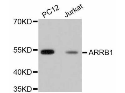 ARRB1 / Beta Arrestin 1 Monoclonal Antibody