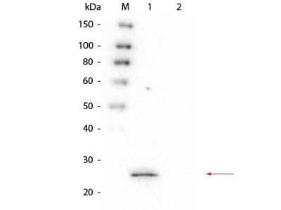Glutathione S-Transferase / GST Antibody (4D12.H7.D10.E3)