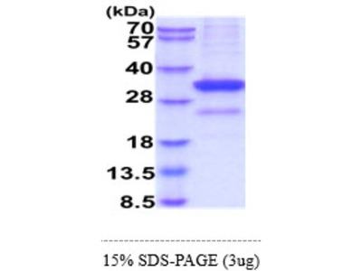 MBL-2 Recombinant Protein