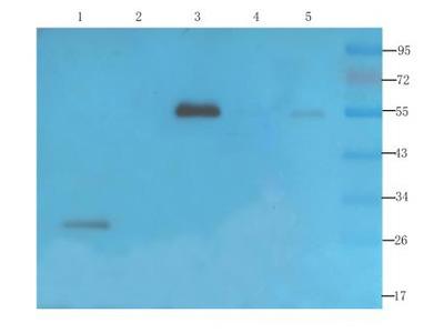 VEGF Antibody (VG76e) - Chimeric