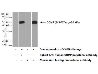 COMP Polyclonal antibody - KD/KO Validated