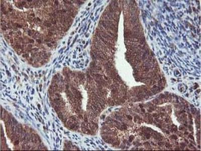 HDHD1 Monoclonal Antibody (OTI7A2)