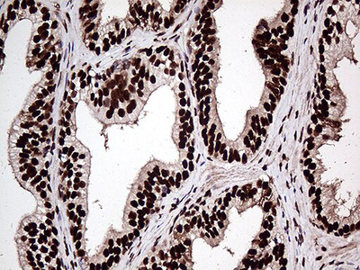 ZRANB2 Monoclonal Antibody (OTI2E3)