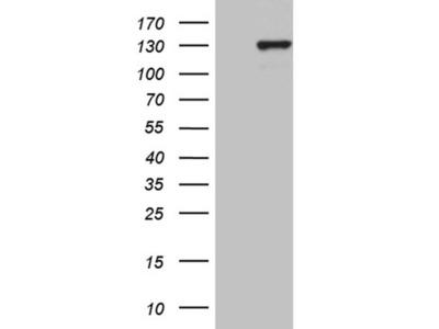 PMS1 Monoclonal Antibody (OTI5E10)