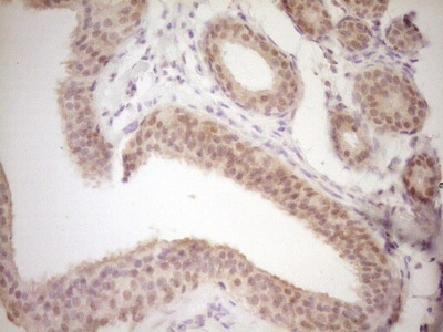 TRIB3 Monoclonal Antibody (OTI3C6)