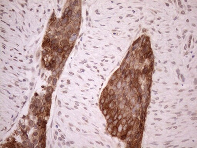 Aladin Monoclonal Antibody (OTI5B10)