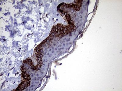 P4HA3 Monoclonal Antibody (OTI9A2)