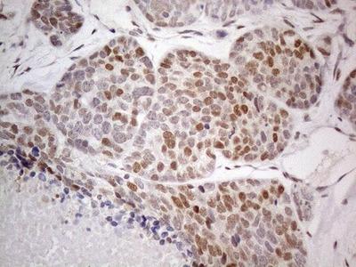 TCEAL1 Monoclonal Antibody (OTI1B1)