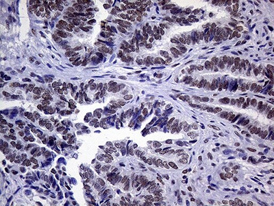 XPB Monoclonal Antibody (OTI6H8)