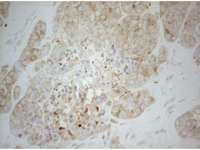ALOX5 Monoclonal Antibody (OTI2C5)