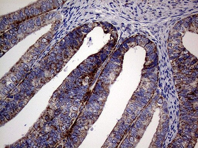 MRPL15 Monoclonal Antibody (OTI10B10)