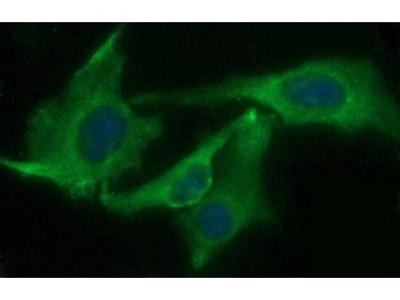 CHAC1 Monoclonal Antibody (OTI4A11)