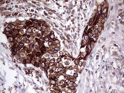Lass2 Monoclonal Antibody (OTI3D9)
